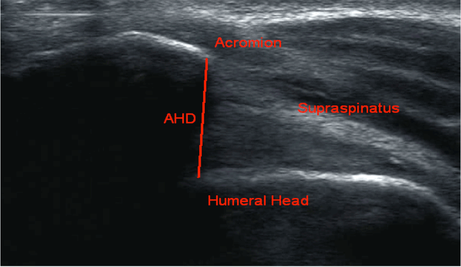 Effect Of Shoulder Positions On The Acromiohumeral ...