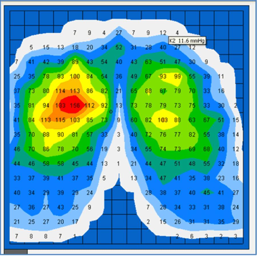 Figure2 - Sandalyedeki bas� haritas�n� g�steren cihaz tr'de var m�?